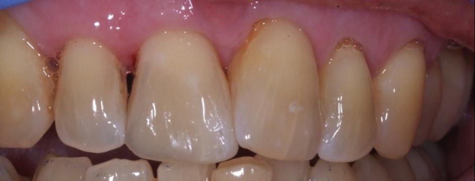 repaired toothsensblog