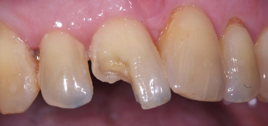 #tooth sensblog